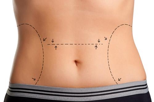 mulher com marcação para cirurgia estética